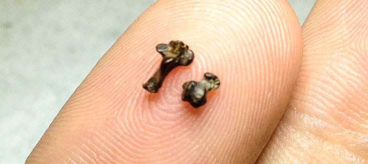 Assistant Professor Stephen Chester holds the tiny ankle bones of the oldest known primate, Purgatorius.