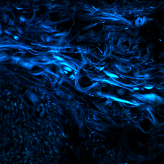 <p>A fluorescent dye shows amyloid proteins on the surface of fungal hyphae during an invasive gut infection.</p>
